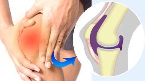 什么是膝关节骨关节炎,膝关节骨关节炎的防治