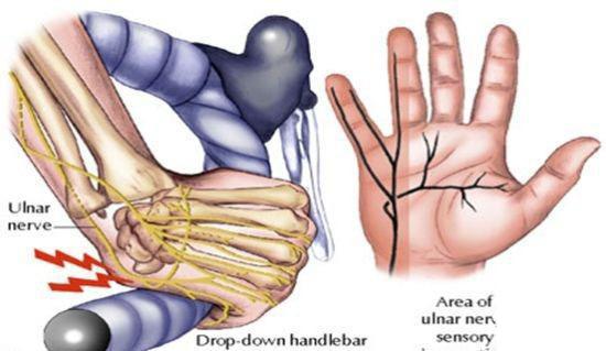 自行车手部损伤的识别与预防