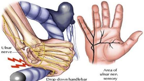 自行车运动手部伤害认识与预防