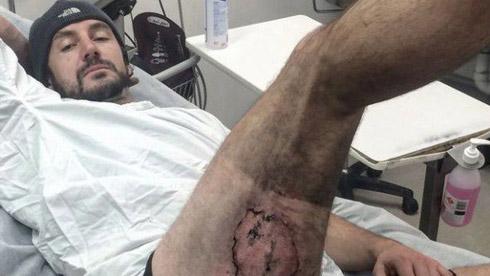 英国男子骑单车摔倒 苹果手机爆炸 大腿被灼伤!